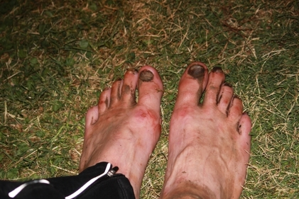 Barefoot Jason's feet during the Western States 100